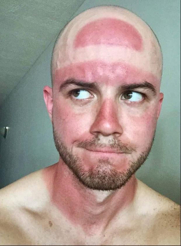 da bị cháy nắng